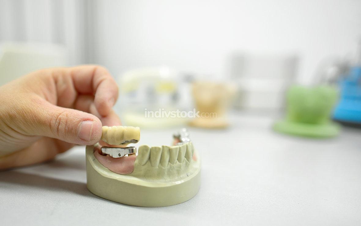 Dental technician  in dental laboratory