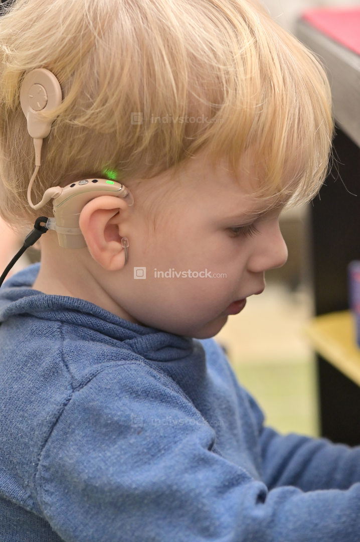 Boy With A Hearing Aids And Cochlear Implants