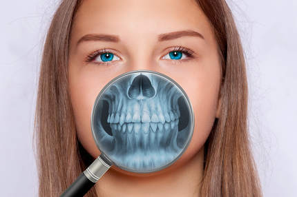 Radiograph of face, dentistry