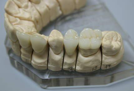 Dental prosthesis close up in dental workshop.